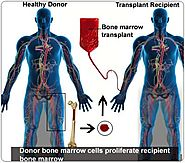 Affordable Bone Marrow Transplant in India