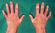 Scleroderma: a disease of the connective tissue