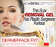 How To Fade Acne Scars - Dermefface FX7 Review