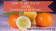 How To Get Rid Of Hives Naturally At Home