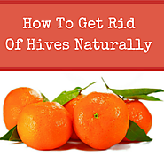 Natural Herbal Remedies: How To Get Rid Of Hives Naturally At Home