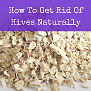 How To Get Rid Of Hives Naturally