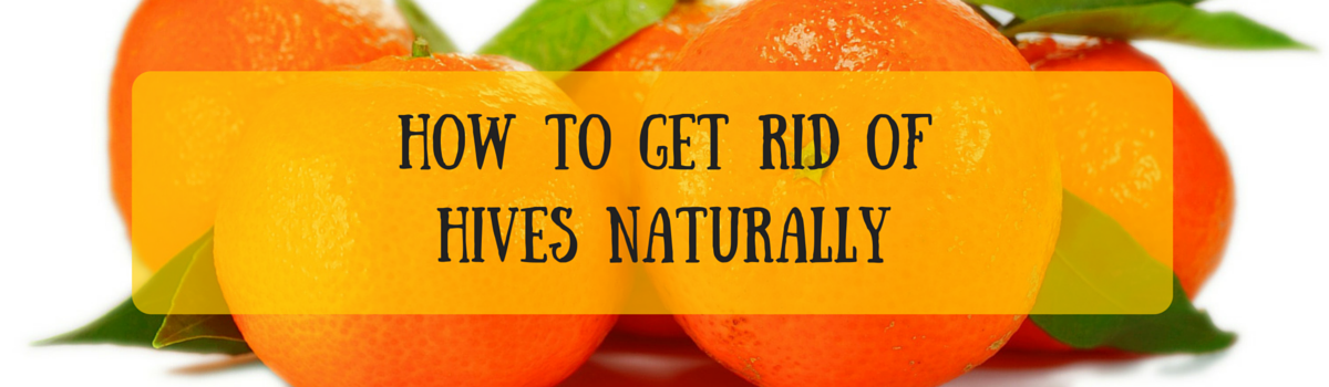 Headline for How To Get Rid Of Hives Naturally