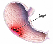 Stomach Cancer - Gastric Cancer