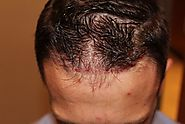 Unshaven FUE (UFUE) Restoration Procedure - Rejuvenate Hair Clinics