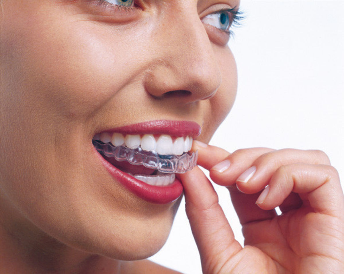 Headline for 5 of the best things about having clear aligners