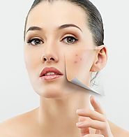 Laser Surgery for Acne Scar