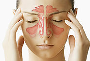 Types of Cures available for Sinusitis!