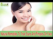 Natural Remedies To Treat Scars And Pimples On Face Safely And Effectively