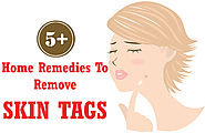Top 5+ Best Home Remedies To Remove Skin Tags - Beauty & Glamour Tips