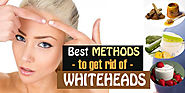 25+ Best Home Remedies to Get Rid of Whiteheads Fast - Beauty & Glamour Tips