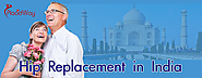 Hip Replacement in India