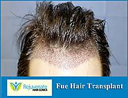 Hair Transplant Cost In London