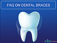 FAQ: Care for Teeth while wearing braces