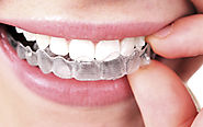 Everything You Need to Know About Braces