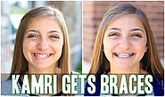 Kamri Gets Braces! | Behind the Braids Ep.4