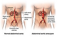 Some Useful Tips to Avoid Aneurysm