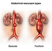 Signs of Abdominal Aortic Aneurysms That You Shouldn't Ignore