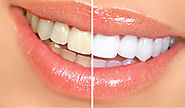 Is teeth whitening treatment from a dentist safe?