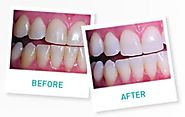 How much whiter will be teeth be after treatment