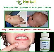 Natural Herbal Treatment for Sebaceous Cyst and Symptoms, Causes - Herbal Care Products Blog
