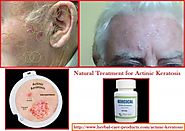 Natural Herbal Treatment for Actinic Keratosis and Symptoms, Causes - Herbal Care Products Blog