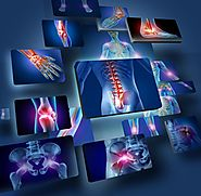 OSTEOPOROSIS – ARE YOU AT RISK?