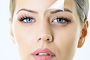 Skin Care Clinic in Rajsamand, Skin Care Clinic in Udaipur, Skin Care Clinic in Banswara