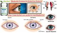 Natural Herbal Remedies for Blepharitis Eyelid