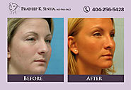 RHINOPLASTY ATLANTA (NOSE RESHAPING)