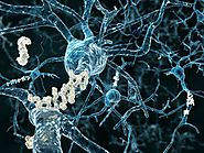 Resveratrol study offers new insight into Alzheimer's