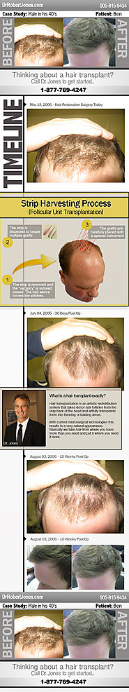 Hair Restoration Surgery Case Study – Ben