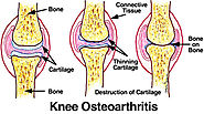 Affordable Knee Replacement Surgery for Osteoarthritis in India