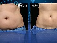Freezing fat cells: Coolsculpting claims to remove fat without surgery