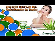 How to Get Rid of Acne Fast, Herbal Remedies for Pimples