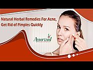 Natural Herbal Remedies For Acne, Get Rid of Pimples Quickly