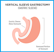 Affordable Gastric Sleeve Surgery Clinic in Perth