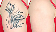 All you need to know about laser tattoo removal