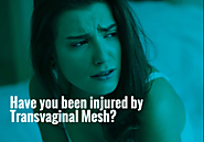 Are you Injured by TVM: Mesh lawsuit to Help You