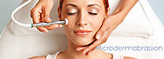 Best Microdermabrasion in Mississauga - Lucie Medispa