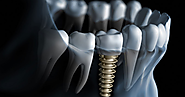 Things To Know About Dental Implants Melbourne