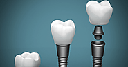 Looking for dental implant Melbourne? Check this