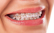 Find the Best invisalign in Melbourne - captivatedental