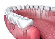 Dental Implant a treatment that brings smile
