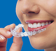 Invisalign Melbourne - An Effective Alternative for Teeth-Straightening Braces | Captivate Dental