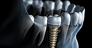 Things To Know About Dental Implants Melbourne | Captivate Dental