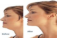 10 Quick Exercises To Get Rid Of Your Double Chin