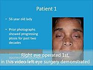 Best Droopy Eyelid Ptosis Surgery in India by Cosmetic Oculoplasty Surgeon- Dr. Debraj Shome