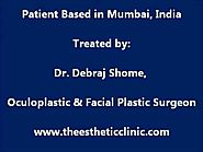 Botox Treatment (Botulinum Toxin Injections) Blepharospasm & Hemifacial Spasm in India
