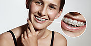 Getting Dental Braces- 10 Important Things You Should Know